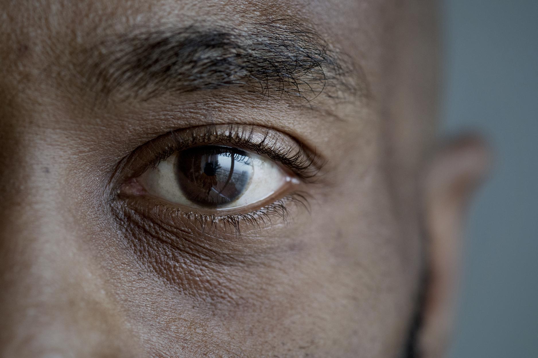 Avala-WebImages-Health-Ophthalmology2
