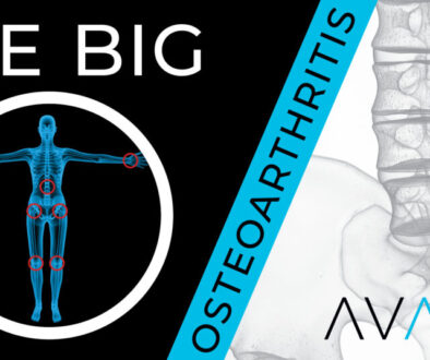 The Big O - Osteoarthritis