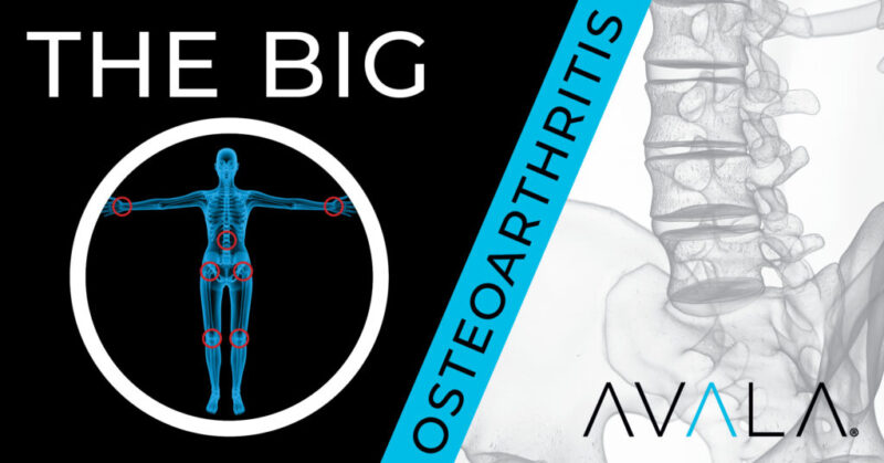 The Big O - Osteoarthritis