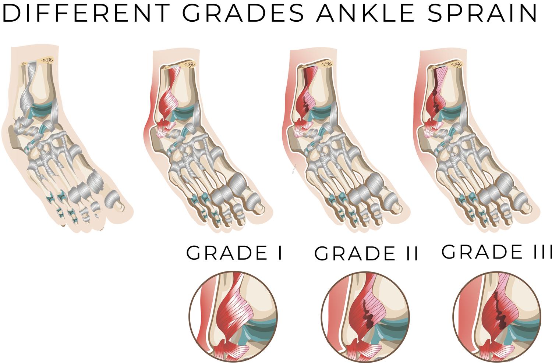 Ankle-Sprain-Grades