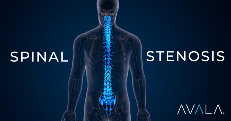 Spinal-Stenosis2